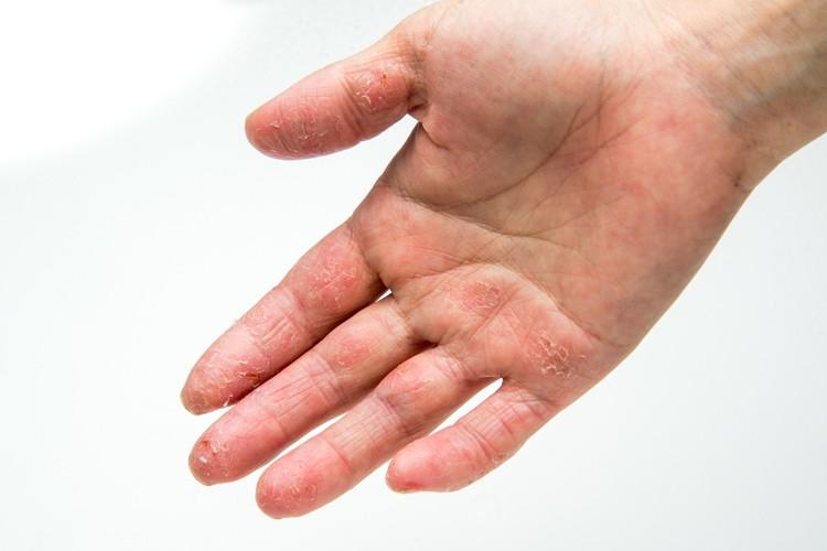 手のブツブツにはいろろある、水虫ってことも