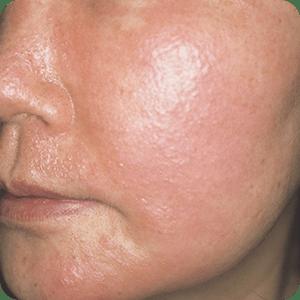 マンゴーによる接触性皮膚炎