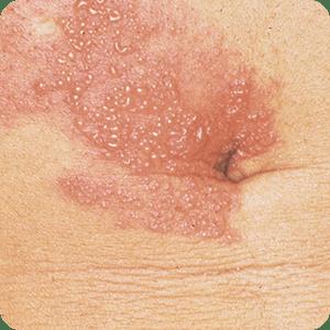 帯状疱疹の症例画像