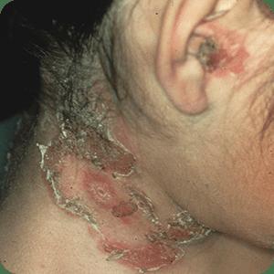 とびひの症例画像(水疱性。水ぶくれができる)