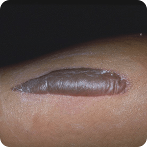 熱傷(Ⅲ度)の症例画像