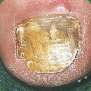 爪の水虫(爪白癬)
