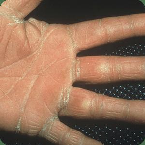手の水虫(手白癬)