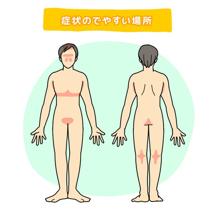 脂漏性皮膚炎のできやすい場所