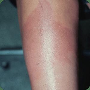 熱傷(Ⅰ度)の症例画像