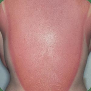 日光皮膚炎の症例画像