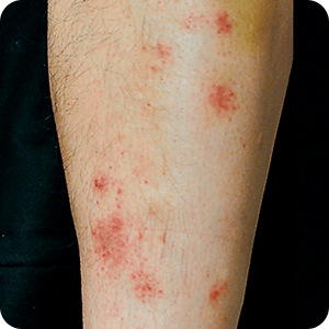 ドライスキンによる掻き壊しの症例画像