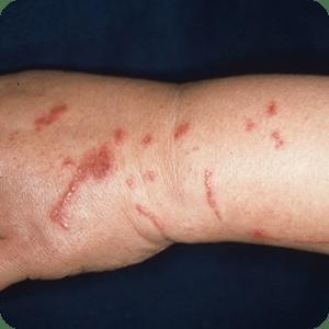 植物(サクラソウ)による接触性皮膚炎