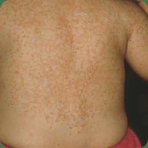 汗疹型皮膚カンジダ症の症例画像
