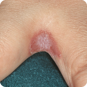 カンジダ性指間びらん症の症例画像