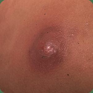 アテローム(粉瘤・ふんりゅう)の症例画像