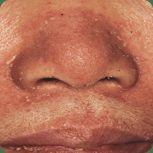 脂漏性皮膚炎の症例画像(鼻のわき)