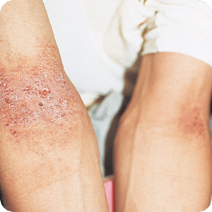 アトピー性皮膚炎:左右対称の皮膚炎・かぶれ