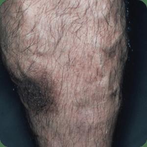 静脈瘤によるうっ滞性皮膚炎