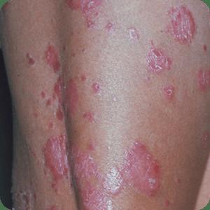 尋常性乾癬の症例画像