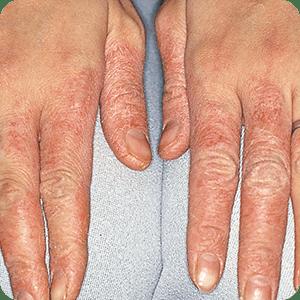 水仕事による手湿疹の症例画像